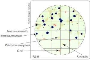 Фото HiMedia FL031-50РТ Бакпечатки HiTouch для дифференциации шести микроорганизмов (50 чашек d 55 мм)