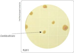 Фото HiMedia FL011-50РТ Бакпечатки HiTouch для обнаруж.и подсчета дрожжев. и плеснев. грибов (50 чашек d 55 мм)