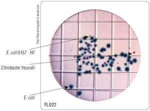 Фото HiMedia FL022-50РТ Бакпечатки HiTouch для обнаружения E.coli и колиформных бактерий (50 чашек d 55 мм)