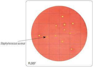 Фото HiMedia FL007-50РТ Бакпечатки HiTouch для ускоренного подсчета S. aureus (50 чашек d 55 мм)